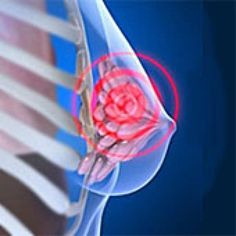 What Causes Breast Pain and Discomfort?: Breast Pain Symptoms