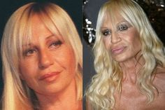 Donatella-Versace plastic surgery-------The fashion icon is ironically the ugliest woman on the planet. Why would anyone take fashion advice from someone whose face has been transformed into this? She looks more Muppet than human now.