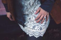 Lace dress and blazer | Oh Lovely Bows Street Styles, Lace Dress, Bows, Blazer, Creative, Handmade, Dresses, Women, Fashion