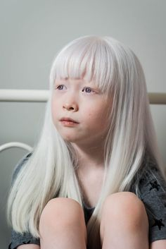 Draw People My Experience Adopting a Child with Albinism Modelo Albino, Pretty People, Beautiful People, Albino Girl, Albino Model, Les Religions, Aesthetic People, Photography Challenge, Adopting A Child