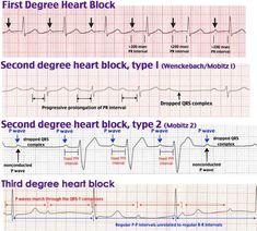 Second Degree Heart Block, Mobitz Type I (Wenckebach) P waves and QRS complexes Cardiac Nursing, Nursing Mnemonics, Oncology Nursing, Heart Block Poem, Ekg Interpretation, P Wave, Nursing Information, Nursing School Notes, College Nursing