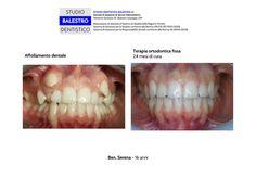 Casi clinici ortodontici Grave affollamento dentale http://www.studiodentisticobalestro.com/2017/09/grave-affollamento-dentale.html