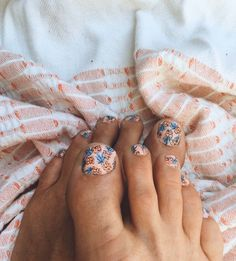 Goldfish Kiss — pineapple print toes