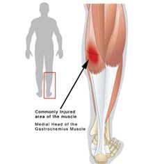 Pulled or Strained Calf Muscle -