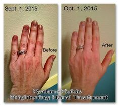 Do brown spots on your hands make them look old? Rodan and Fields Brightening hand treatment to the rescue!