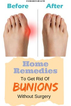 Bunion Remedies, Foot Remedies, Arthritis Remedies, Headache Remedies, Psoriatic Arthritis, How To Remove Bunions, Get Rid Of Bunions, Health And Wellness, Home Remedies