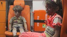 Schwere Verletzungen am Bauch: Bruder des kleinen Jungen aus Aleppo ist tot