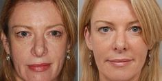 Learn How To Utilize These Facelift Exercises For Preserving Gorgeous Facial And Throat Skin And Age-Regression