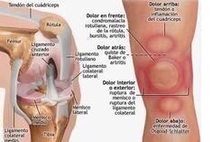 El dolor de rodilla moderado o leve lo podemos tratar efectivamente en nuestra casa. Por diferentes factores, como pueden ser artritis, un esguince o algún factor similar, encontramos distintas maneras naturales para aliviar el dolor causado. Lo ideal debe ser identificar la gravedad y causa principal del dolor, por que se produce, y luego darle …