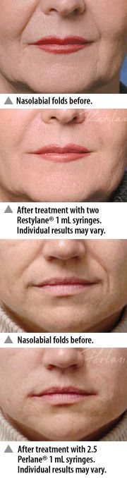Purchase one treatment for any area of the face for $375 (except Lips/Tear Troughs for $425)
