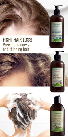 Prevent Baldness and Thin Hair! Just Nutritive + Natural Shampoo For Thinning Hair, Hair Loss Shampoo, Hair Lotion, Curly Hair Styles, Natural Hair Styles, Hair Remedies, Herbal Remedies, Natural Remedies, Hair Loss Treatment