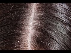 How to Permanently Get Rid of Dandruff at Home