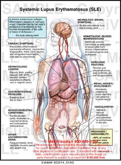 Lupus Infographics