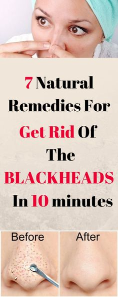 9 Natural Ways to Get Rid of Blackheads and Whiteheads Fast - Softworkout for Best Workout Natural Health Remedies, Herbal Remedies, Blackhead Remedies, Get Rid Of Blackheads, Perfect Skin, Acupressure, Natural Medicine, Fun Workouts, Fitness Tips