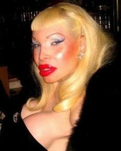 Plastic Surgery Gone really Bad.Does she really think this is beautiful? So grotesque!