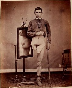 This poor man had two devastating surgeries in less than five months. First, his leg was amputated below the knee after a musket ball injury. His upper thigh was amputated later, presumably due to infection.