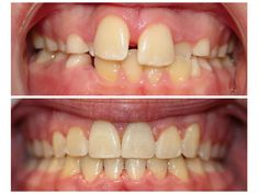 Before and After braces!