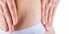 Herbal Remedies For Stretch Marks
