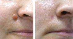 Protège ta santé: Comment faire pour éliminez rapidement les petites verrues de votre peau en utilisant un seul ingrédient