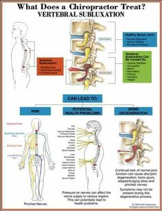 Chiropractors treat many issues, including vertebral subluxations.