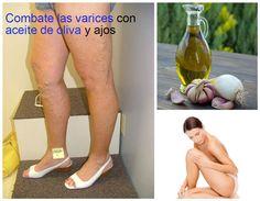 Elimina las varices con aceite de oliva y ajo