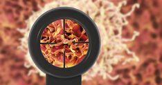 Οι άνθρωποι που ακολουθούν διατροφή πλούσια σε τροφές που προκαλούν φλεγμονή στον οργανισμό κινδυνεύουν περισσότερο από καρκίνο, σύμφωνα με νέα μελέτη ερευ Kai, Chicken
