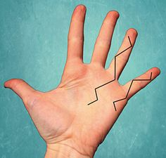 Dupuytren's Contracture and Massage