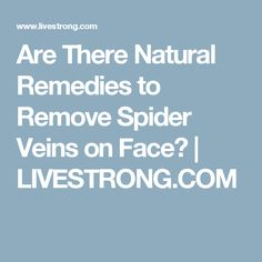 Are There Natural Remedies to Remove Spider Veins on Face? | LIVESTRONG.COM