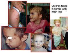 Children of meth homes
