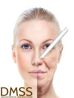 Dallas facial rejuvenation