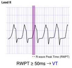 Approach to the Wide Complex Tachycardia - ECGpedia