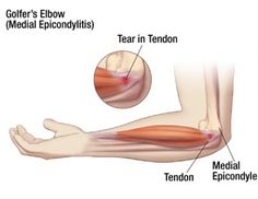 Golfer's Elbow http://www.performchiro.com/your-symptoms/#tab-1-2-golfers-elbow