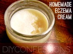 Homemade Eczema Cream/Skin Moisturizer. Apply daily or when dry spot appears. This helps to tighten, renew and heal your skin! Only requires THREE ingredients and lasts for a long period of time.