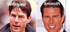 Chatter Busy: Tom Cruise Plastic Surgery