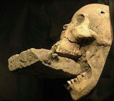 cranium fractum...