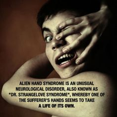 Alien Hand Syndrome. This could explain certain assaults.