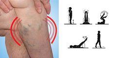 Loading... La actividad física es esencial para prevenir y eliminar las venas varicosas. Existen ejercicios específicos que fortalecen los músculos de las piernas, favoreciendo un retorno venoso. En resumen, estos ejercicios mejoran la circulación sanguínea y permiten la reabsorción de las venas varicosas. Separación de la pierna.Sentados en una silla, abrimos ligeramente las piernas al... Yoga, Videos, Exercise Routines, Skin Treatments, Ligaments Of The Knee, Remove Warts, Yoga Tips, Video Clip, Yoga Sayings