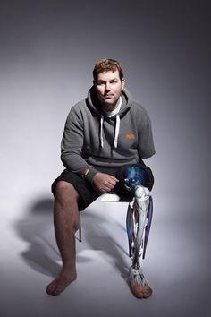Les personnes handicapées ont aussi le droit d'être à la mode, la preuve avec ces magnifiques prothèses