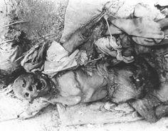 Nuclear bomb victim, Japan