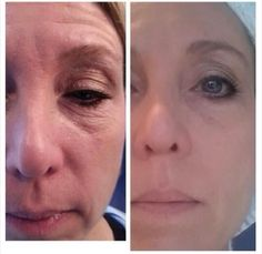 NeriumAD after 45 days of use! Amazing product! Ask me how & Get it now! vmyers.nerium.com