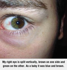"""""""Sectoral Heterochromia."""" David Bowie and Kate Bosworth, for examples, have simple Heterochromia, but this? I have never seen....."""