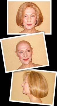 Hair Replacement by Janet  San Carlos, California