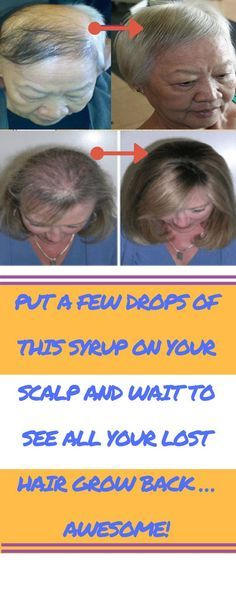 Put a Few Drops of This Syrup on Your Scalp and Wait to See All Your Lost Hair Grow Back… Awesome!