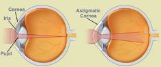 """What is astigmatism? From the wide array of vision problems which affect humans, astigmatism is without the doubt the most misunderstood. Starting from the pronunciation of the condition (people tend to say """"a stigmatism"""" – which is obviousl. Natural Treatments, Eye Treatment, Laser Eye Surgery Cost, Contacts Online, Sleep Studies, Vision Therapy, Health Care, Health Tips"""