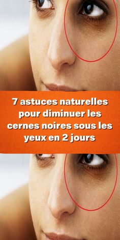 Circulation Sanguine, Solution, Under Eyes, Health And Beauty, Natural Beauty Tips, Beauty Secrets, Natural Makeup