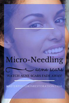 micro-needling acne scars