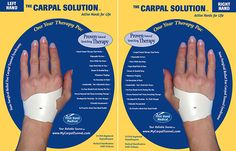 The Carpal Solution Treatment was developed by Doctors working with patients.  It is a natural stretching therapy that is done at night during sleep.  Neurologists call it the best first line treatment for CTS, because it works for 97% of people and there is no downtime and no risks.