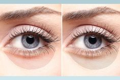 Find out whats causing your dark under eye circles and learn about your treatment options.