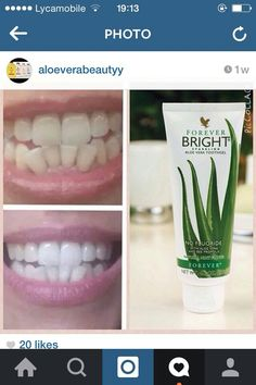 Forever Bright Toothgel