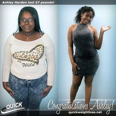 Congratulations to Ashley Harden from Ft. Lauderdale, Florida for losing 57 pounds on the Quick Weight Loss Centers program!  \ #weightlossbeforeandafter